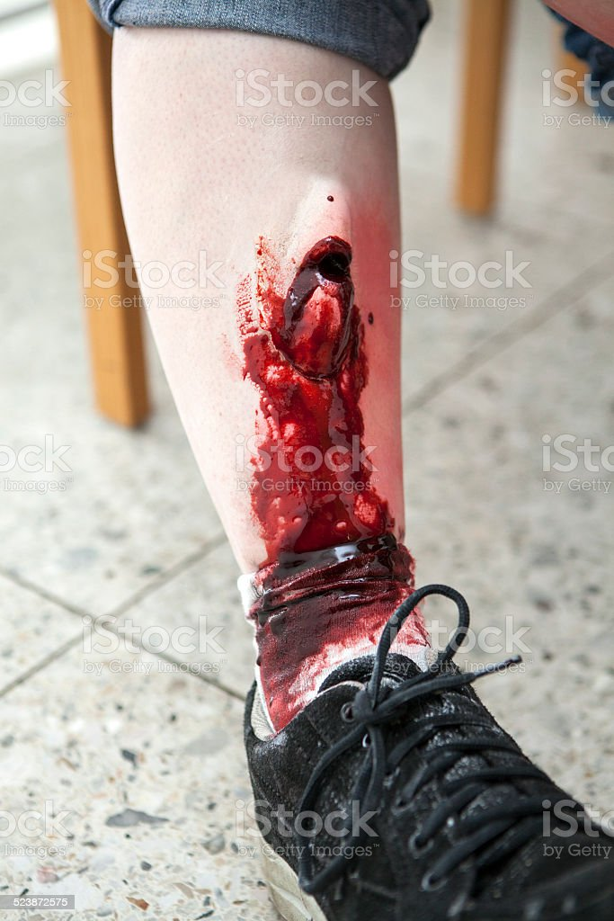 Open leg fracture stock photo