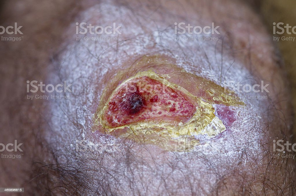 Open wound stock photo