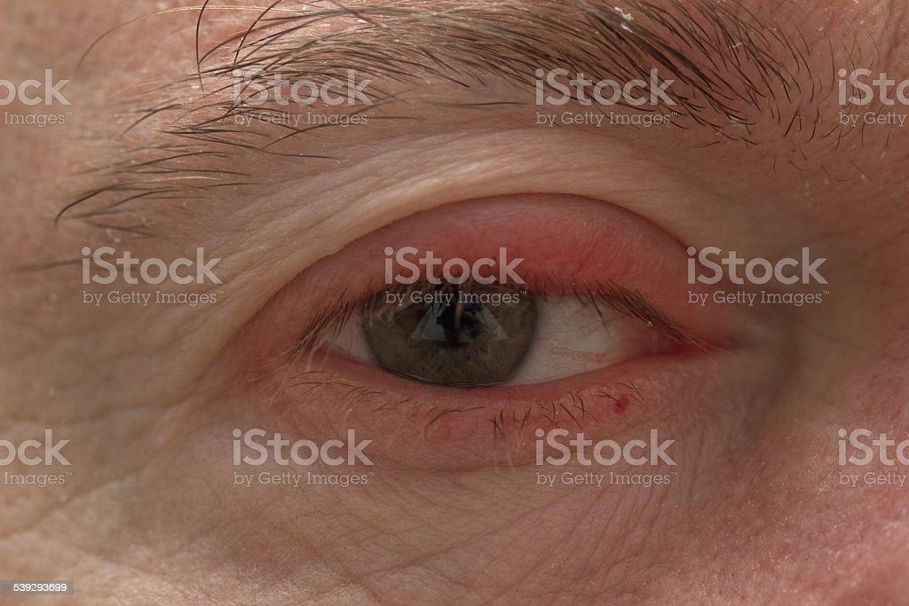 Ophtalmology - Eyelid Swelling closeup stock photo