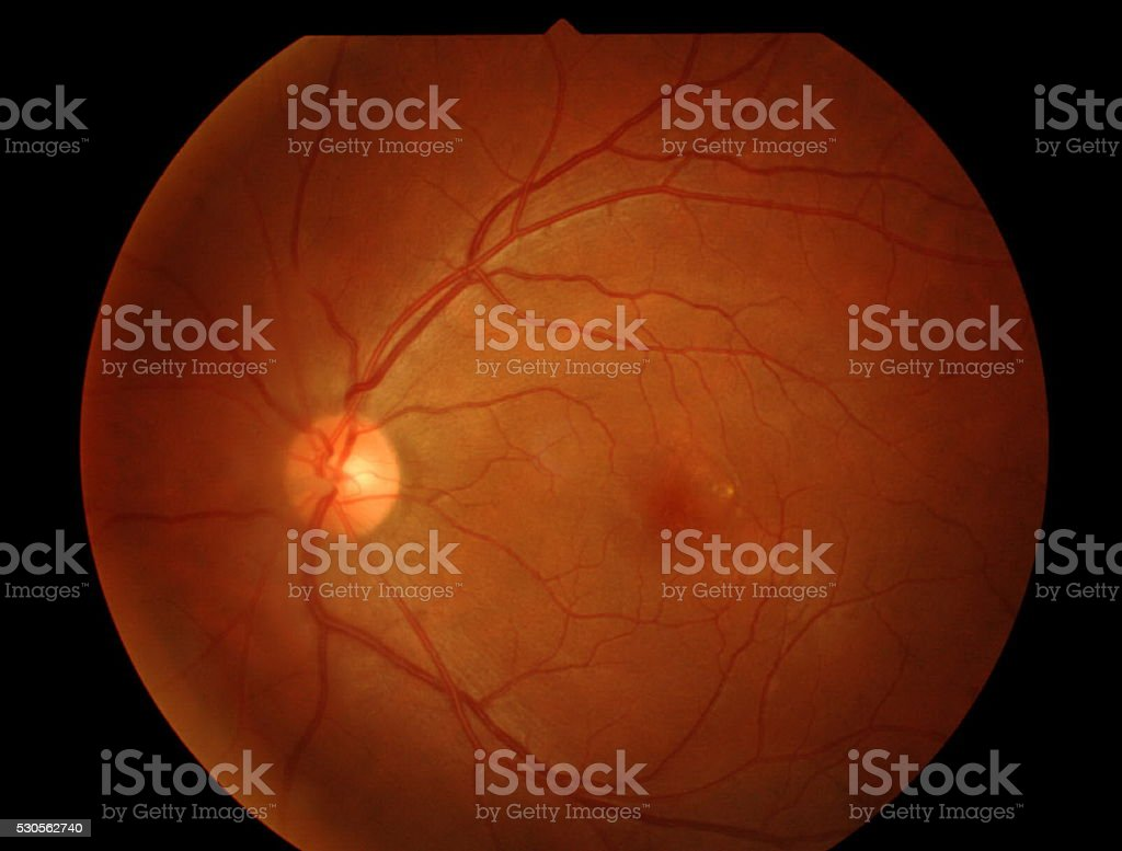 Optical Coherence Tomography (OCT) stock photo