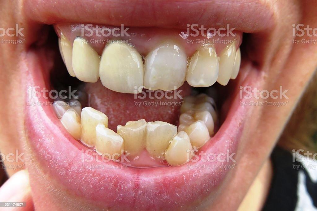 Orthodontic stock photo