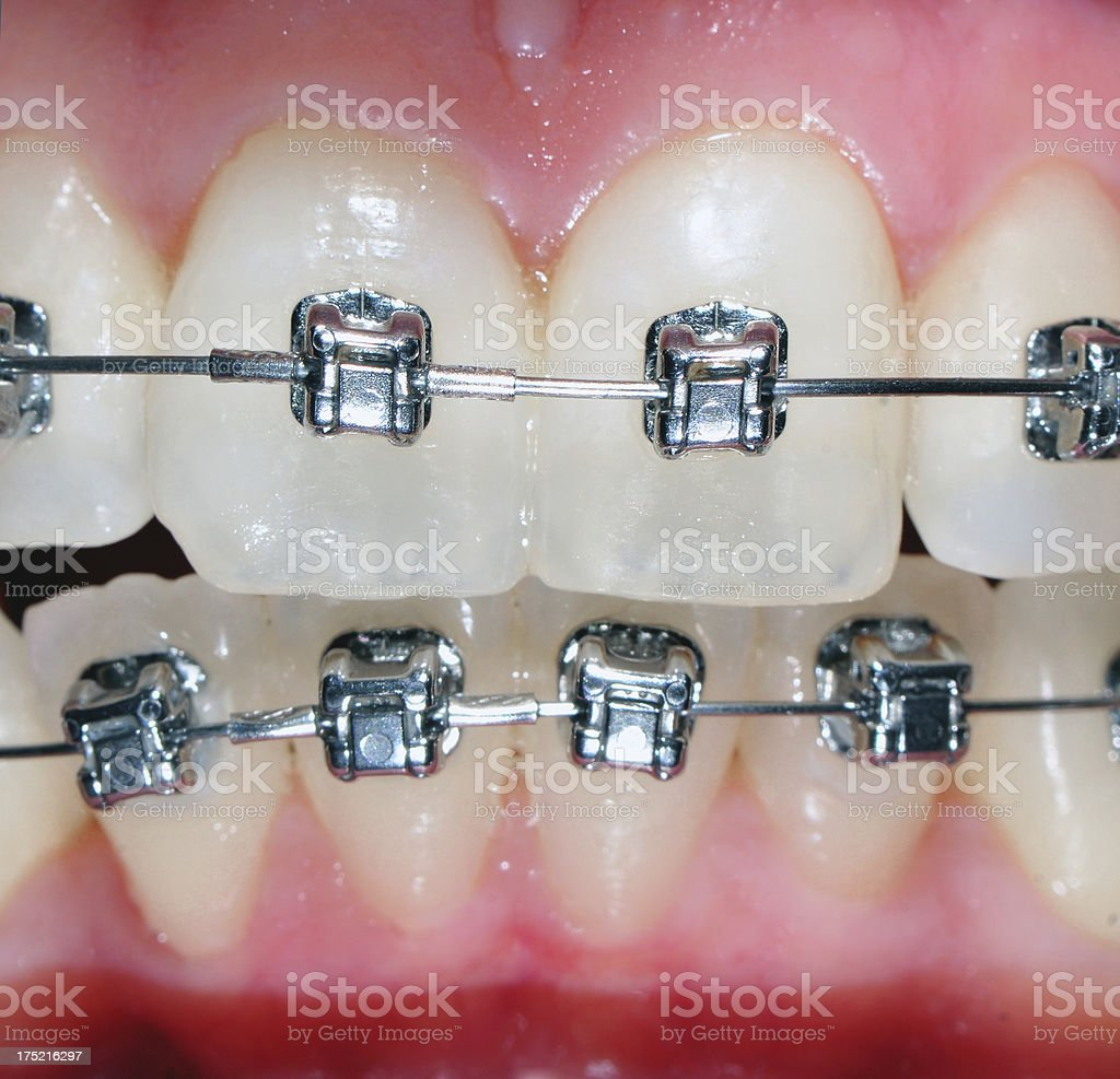 Orthodontic Treatment royalty-free stock photo
