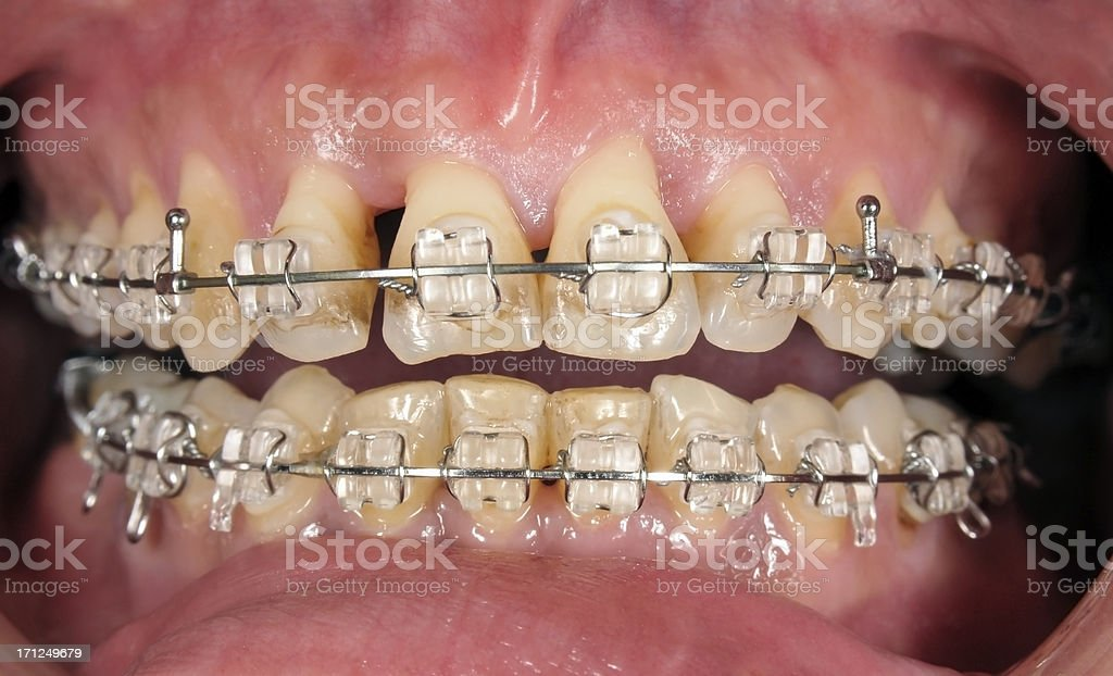 Orthodontic Treatment With Gingival Recesion stock photo