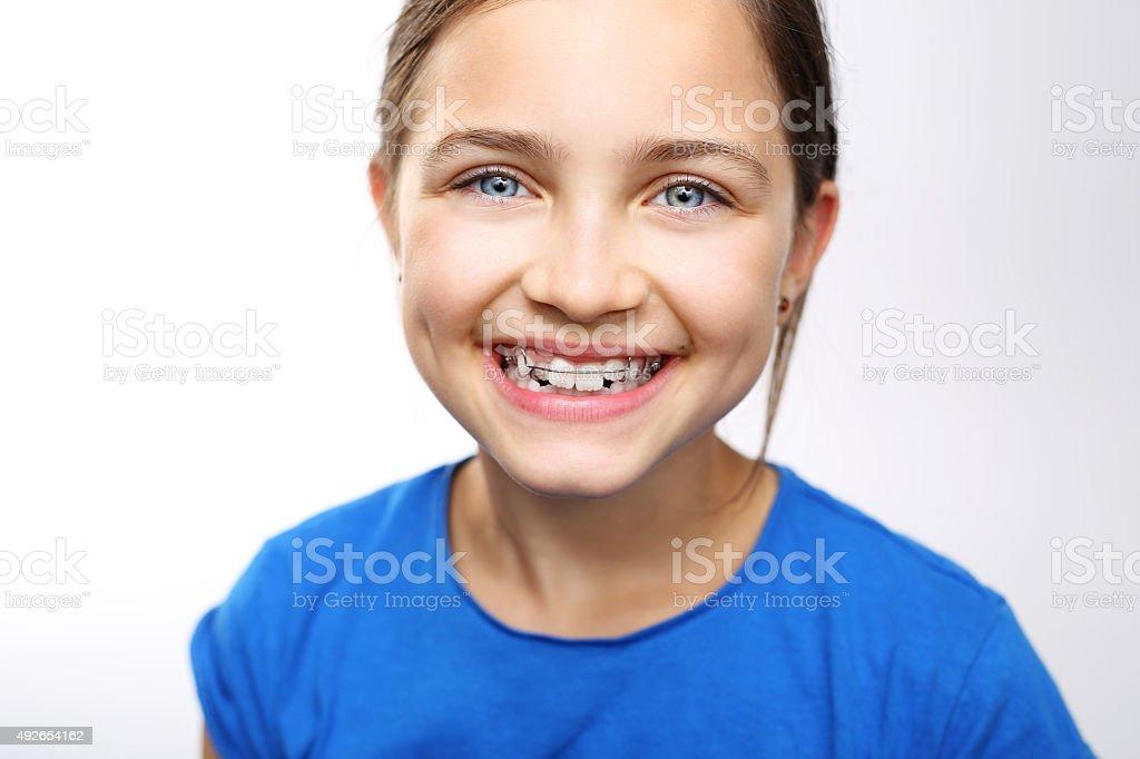 Orthodontics. stock photo