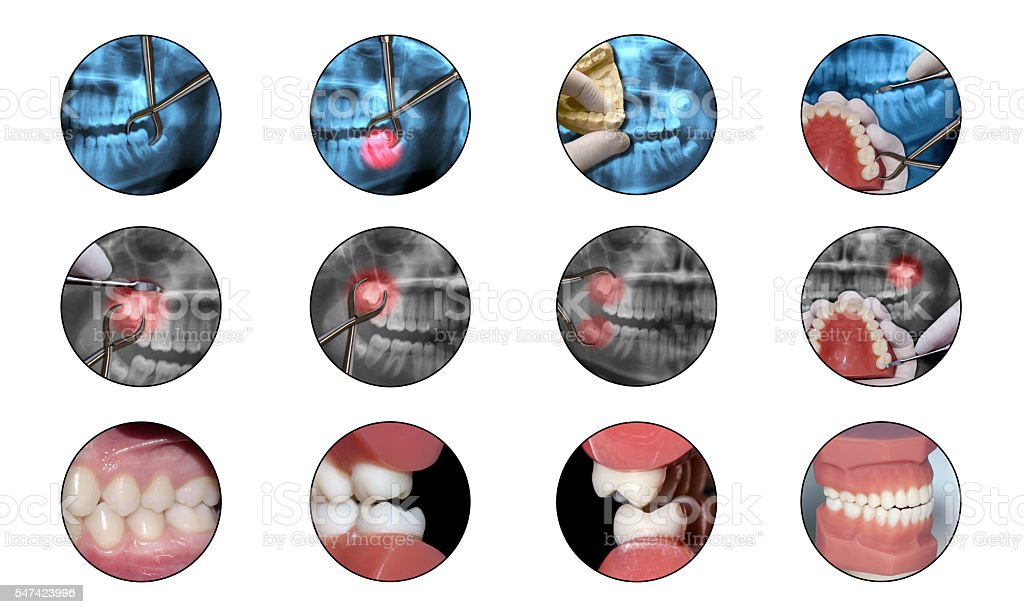 orthodontics surgery infochart dental shape stock photo