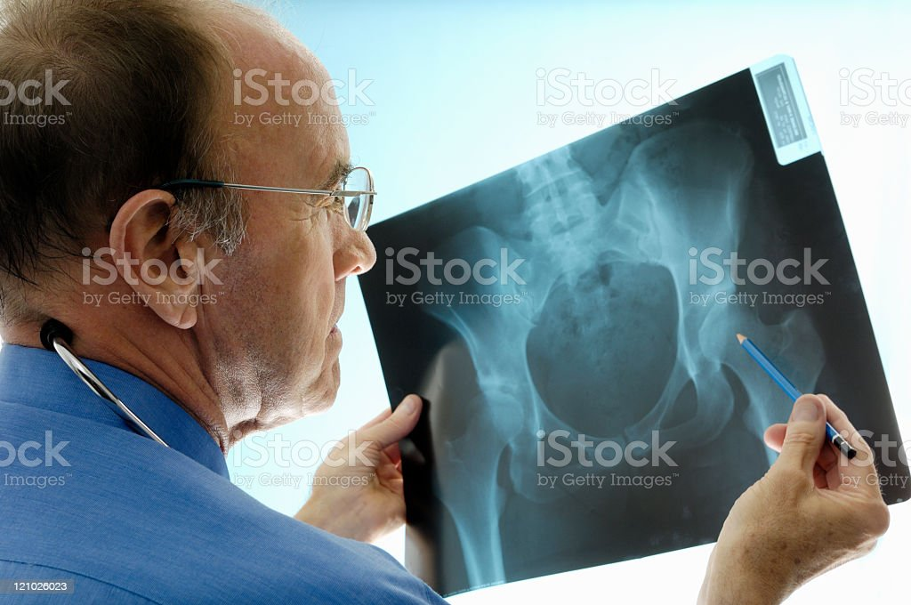 Orthopaedic surgeon consulting pelvic x-rays for a hip replacement. stock photo