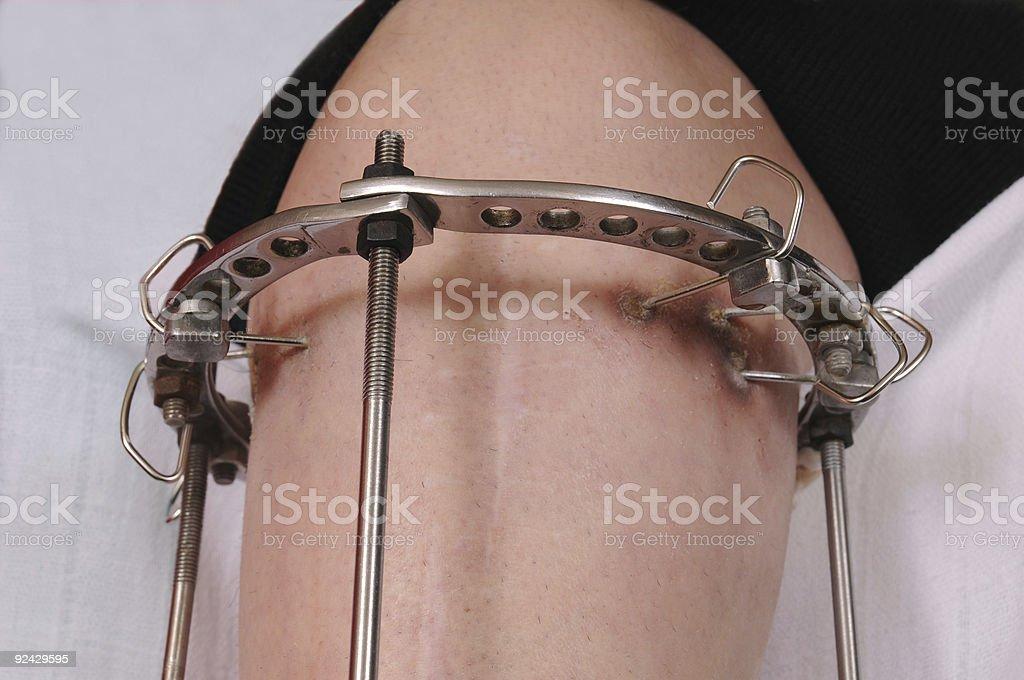 Orthopaedics royalty-free stock photo