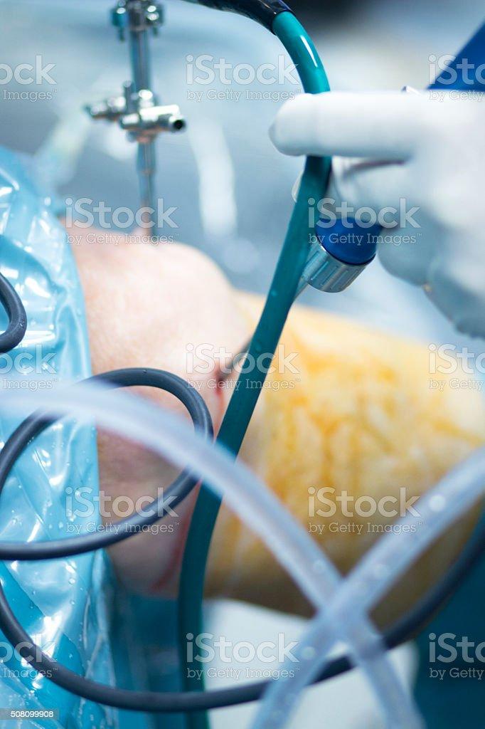 Orthopedics knee surgery hospital operation stock photo