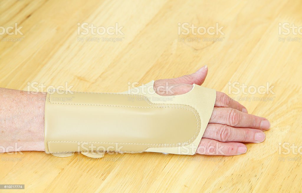 Orthotic hand restraint for carpal tunnel stock photo
