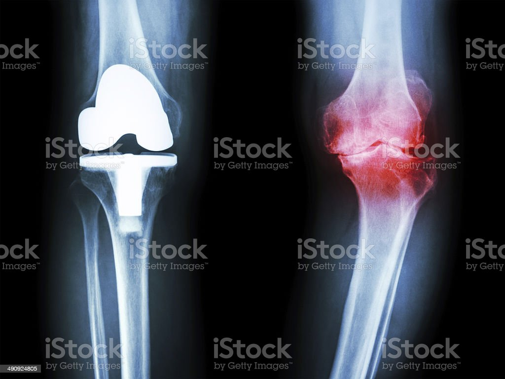 osteoarthritis knee patient and artificial joint stock photo