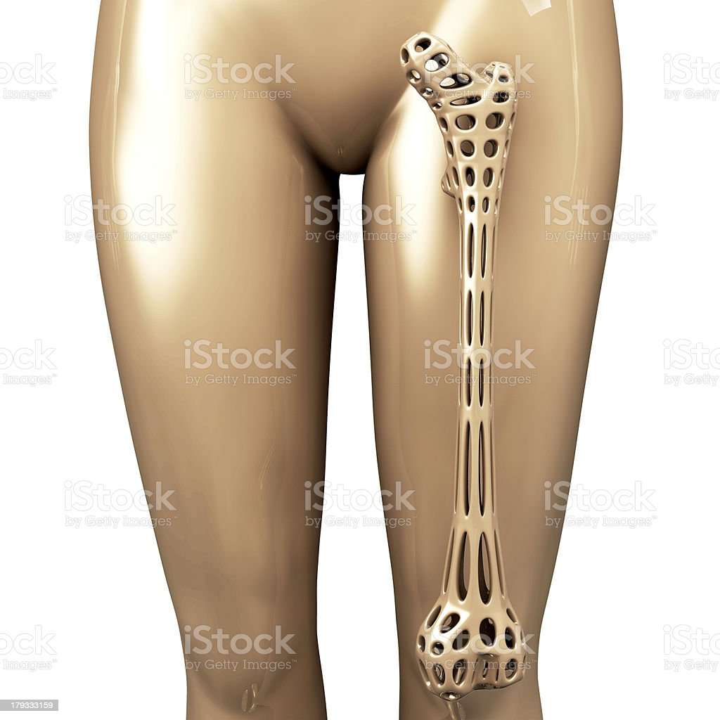 Osteoporosis - 3d rendered illustration royalty-free stock photo