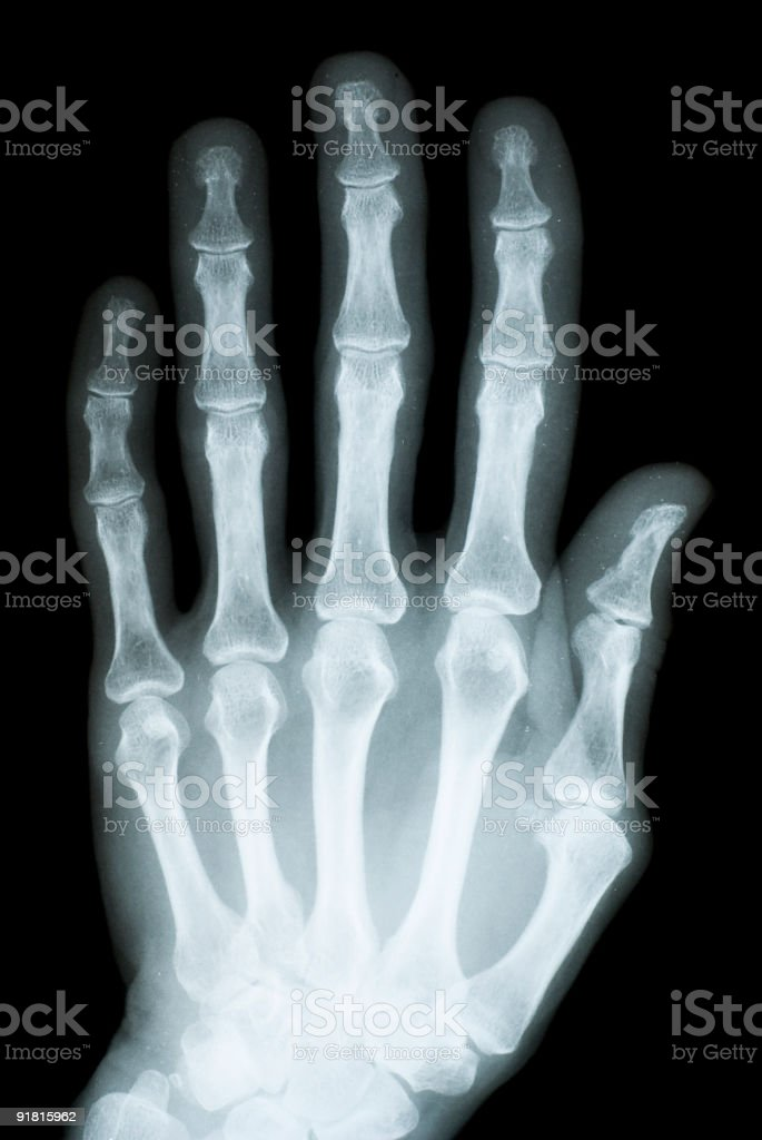 Osteoporosis of female hand royalty-free stock photo