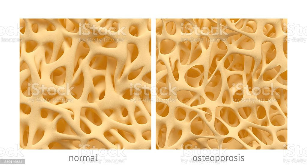 Osteoporosis vector art illustration