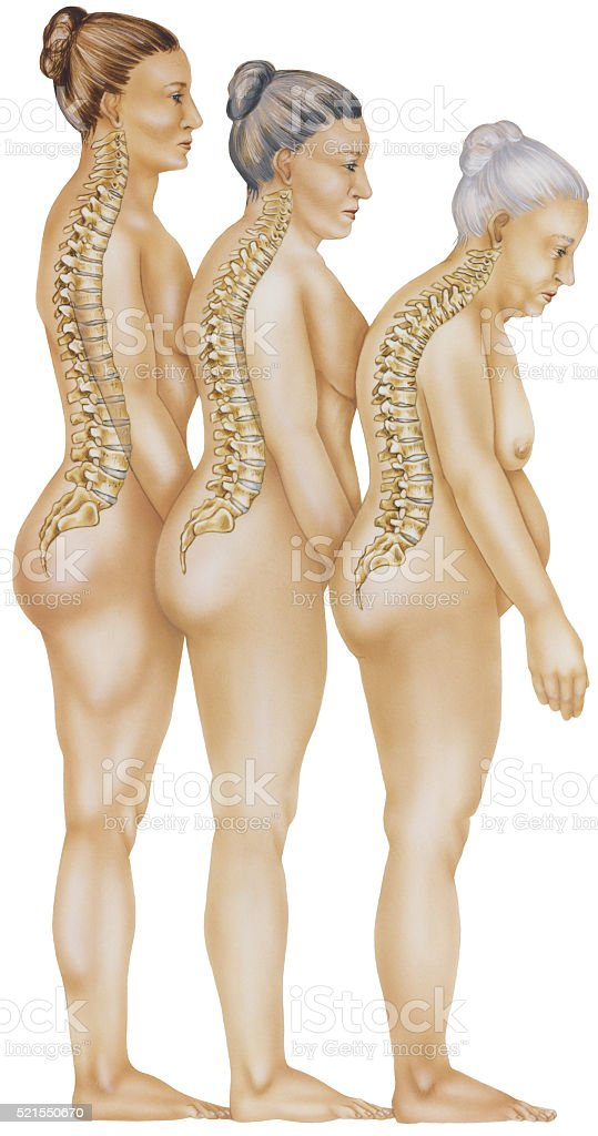 Osteoporosis - Progression of Vertebral Fractures stock photo