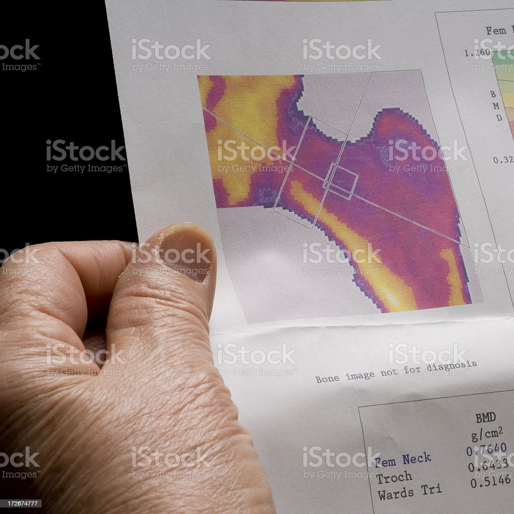 Osteoporosis test royalty-free stock photo