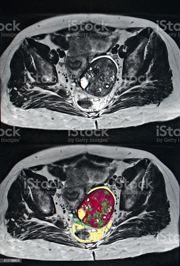 ovarian cancer, MRI stock photo