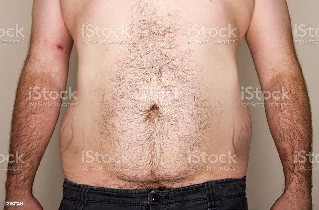 Overweight mans abdomen stock photo