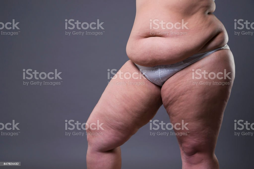 Overweight woman with fat legs and stomach, obesity female body on...