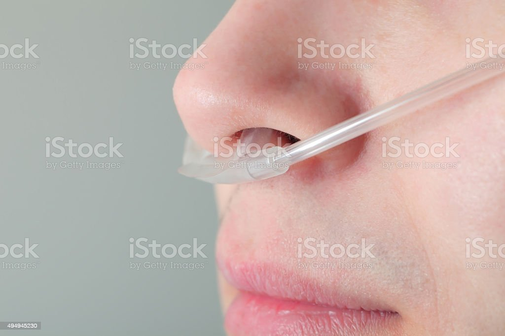 Oxygen tube in the patient's nose stock photo