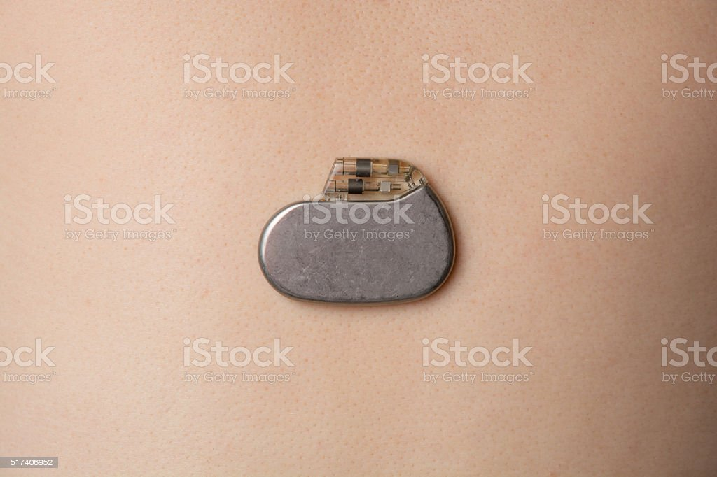 pacemaker and skin the background stock photo