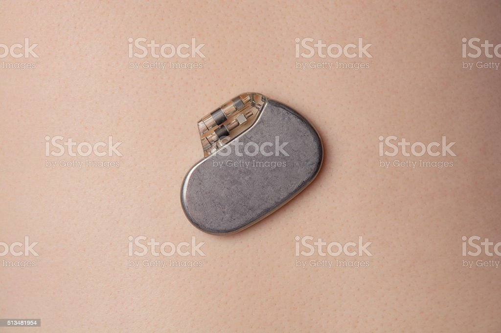 pacemaker on the body stock photo