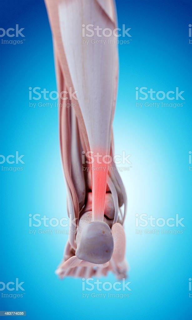 painful achilles tendon stock photo