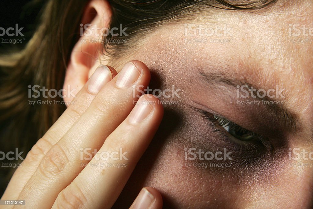 Painful bruised face and eye royalty-free stock photo