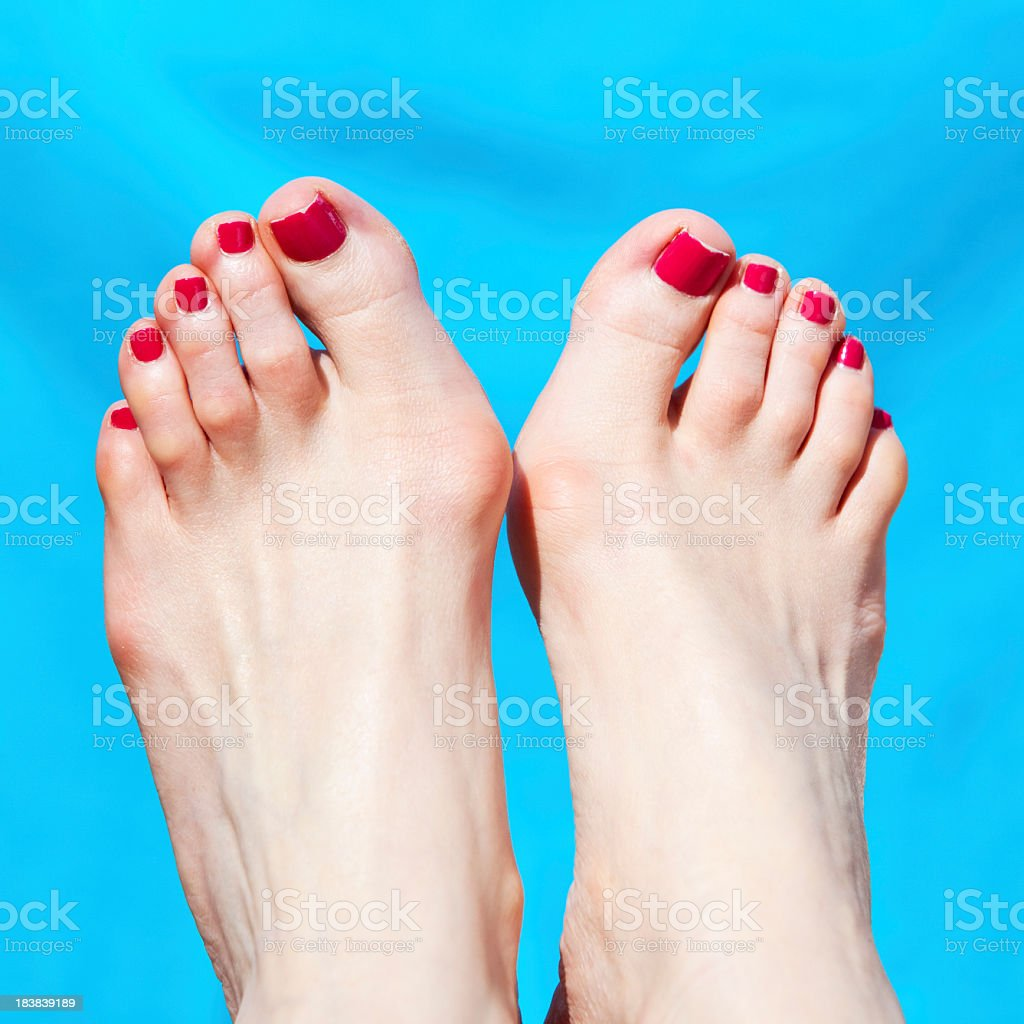 painful bunions on manicured female feet stock photo