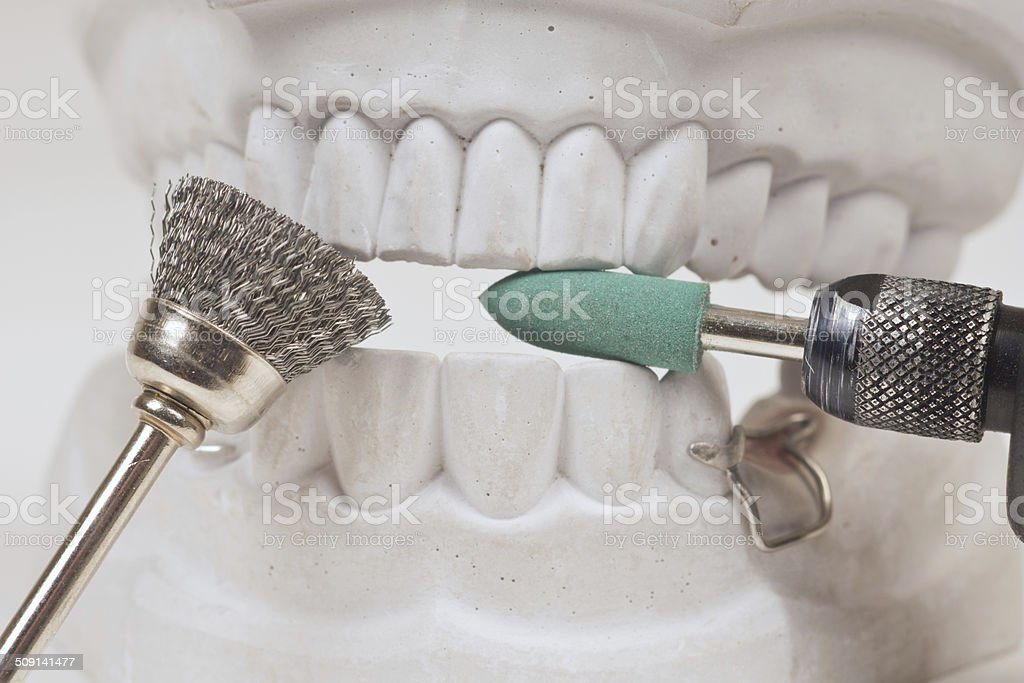 Painful dental treatment stock photo