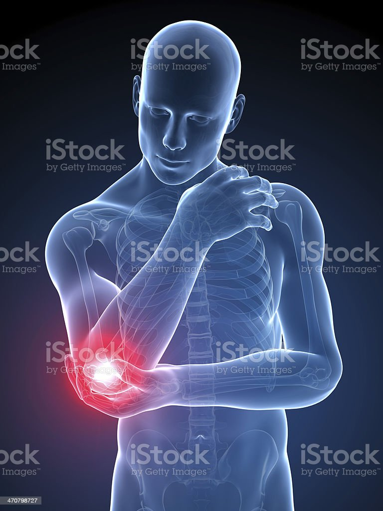 Painful elbow joint icon with pain reference stock photo