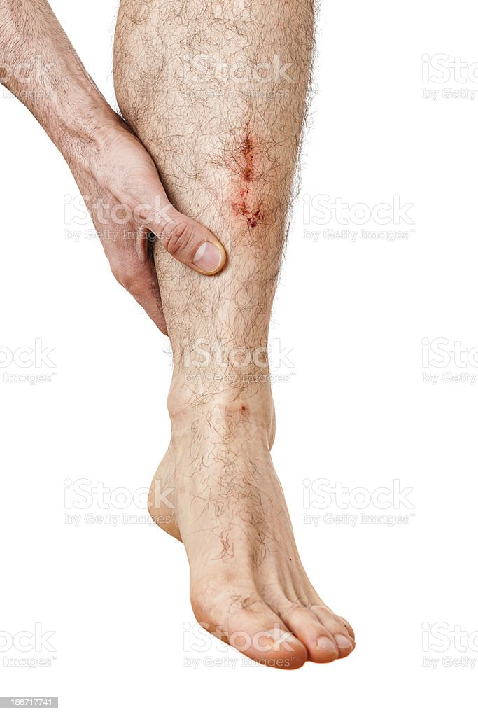 Painful Falling royalty-free stock photo