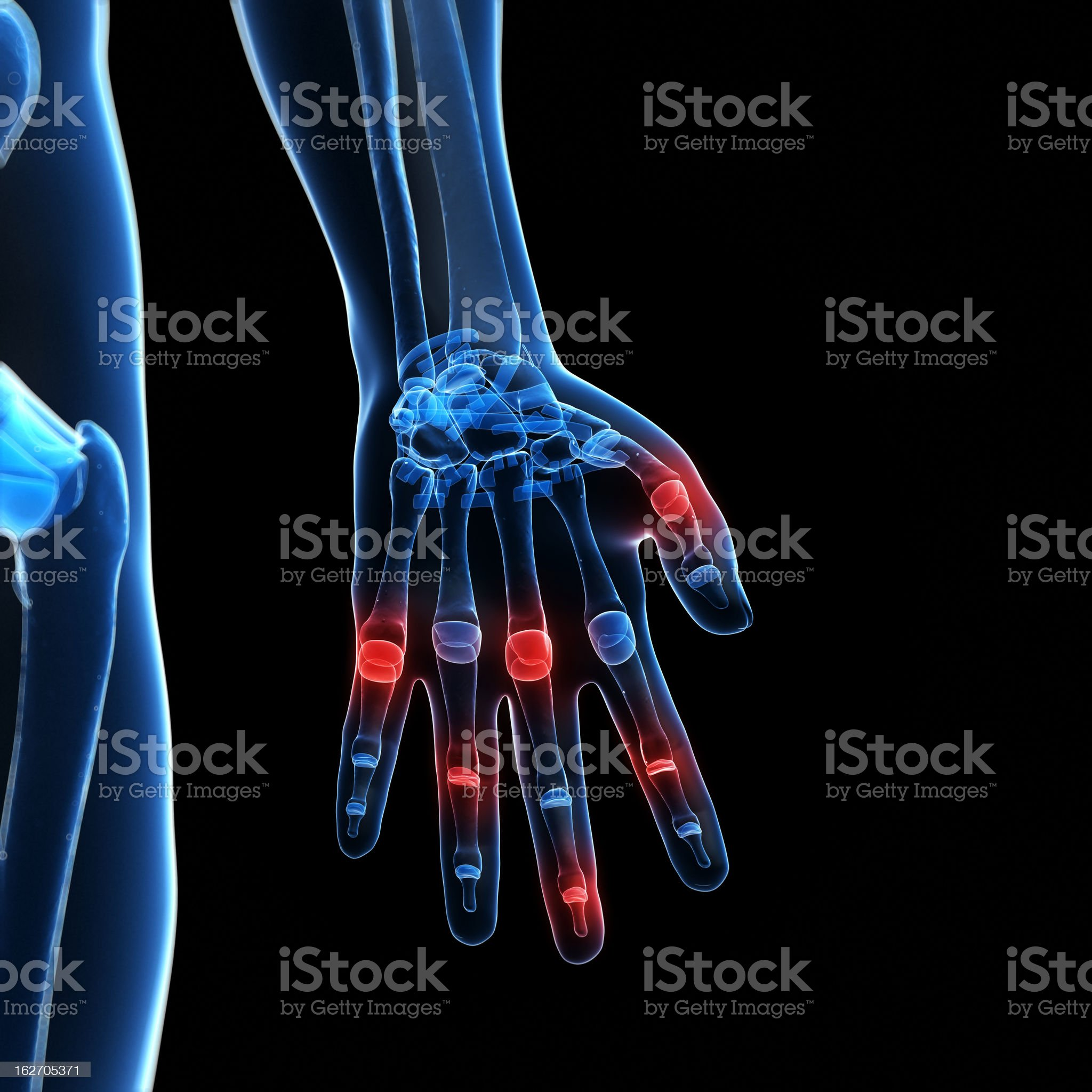 painful finger joints royalty-free stock photo