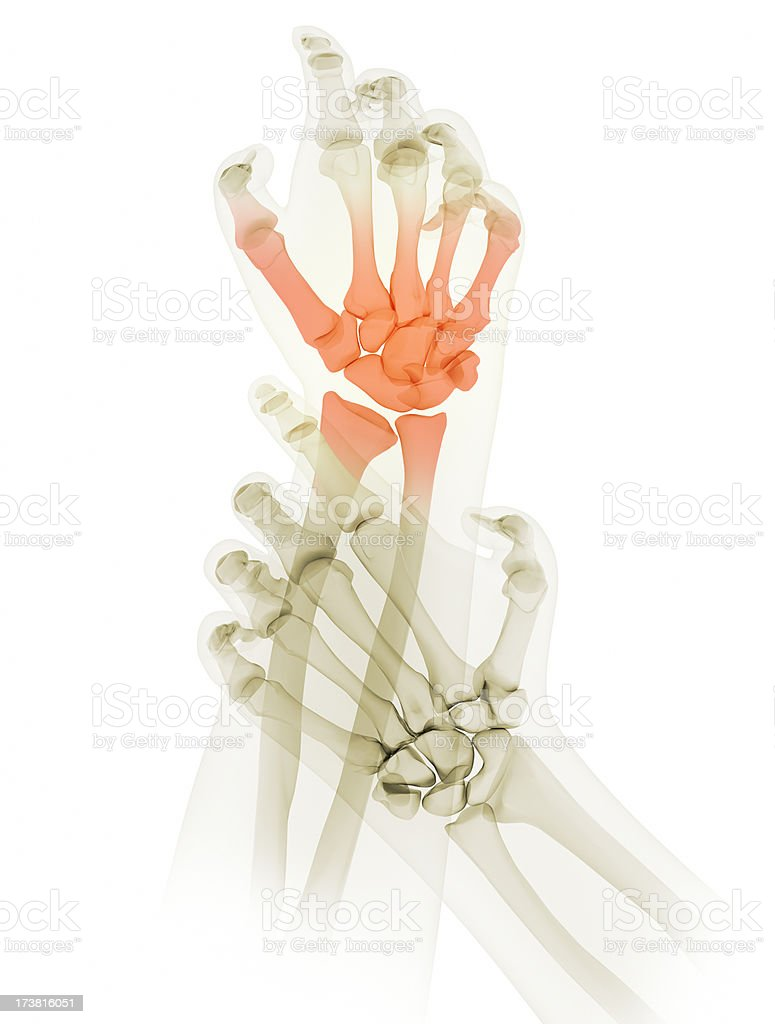 painful hands royalty-free stock photo