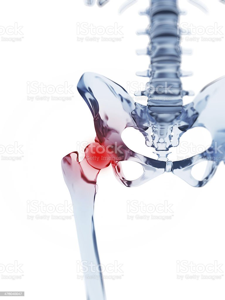 painful hip joint stock photo