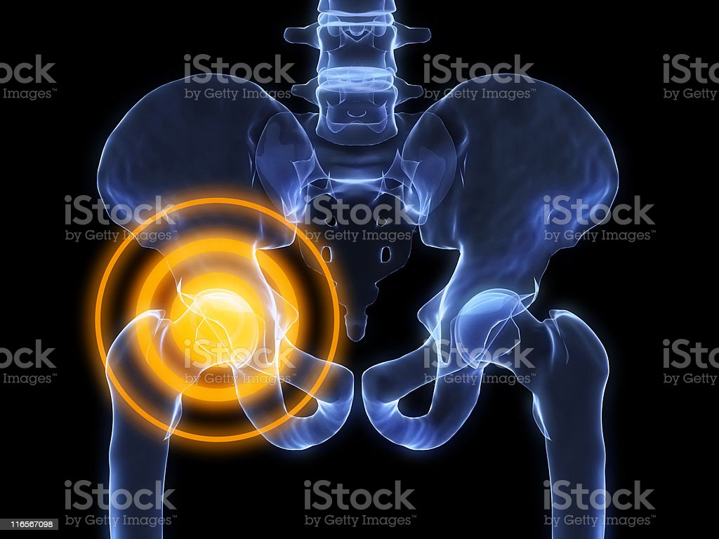 painful hip stock photo