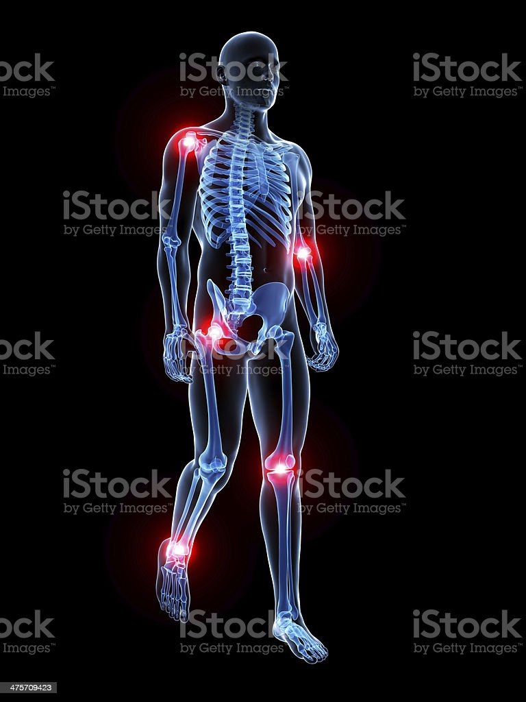 painful joints stock photo