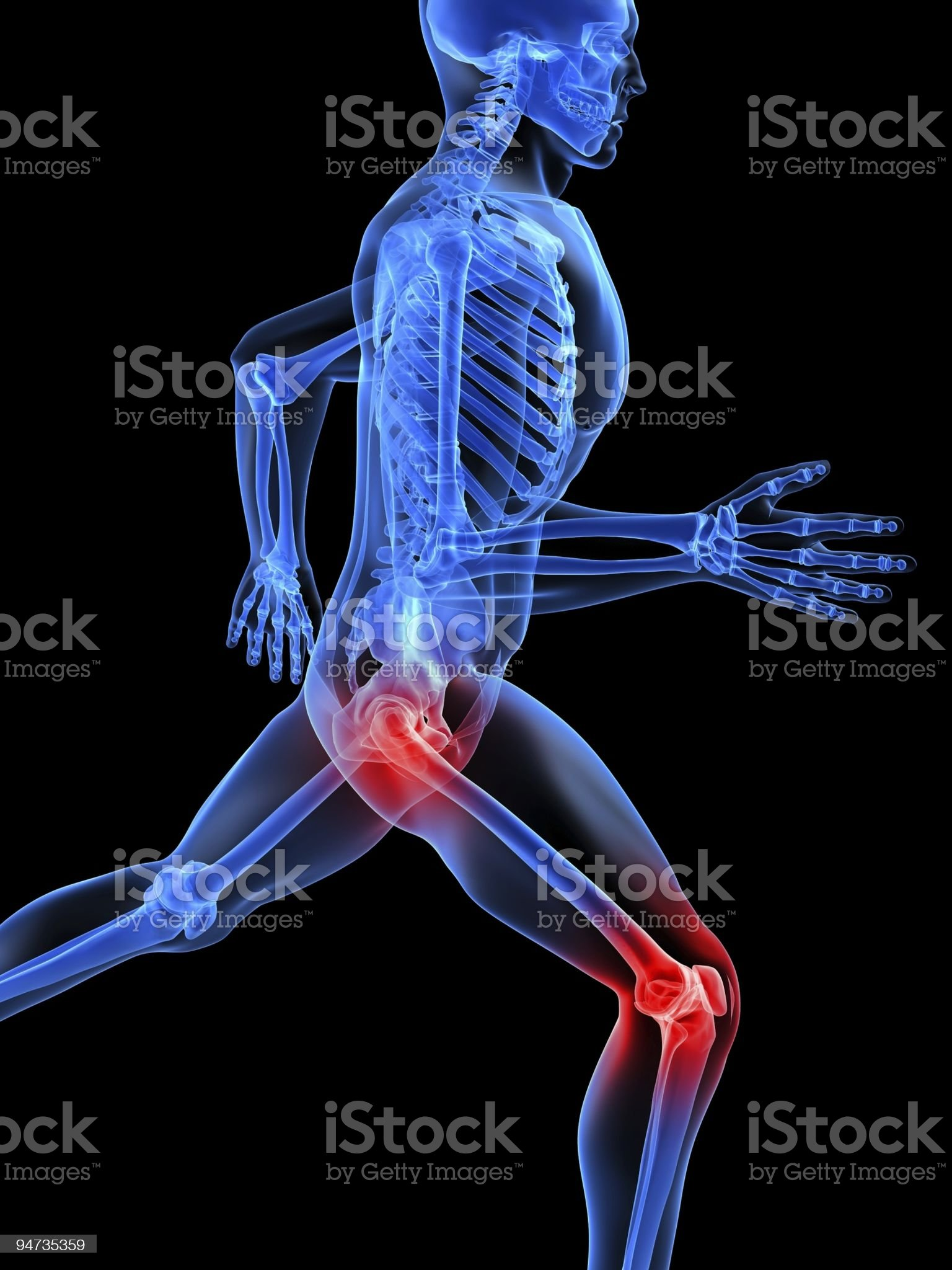 painful joints royalty-free stock vector art