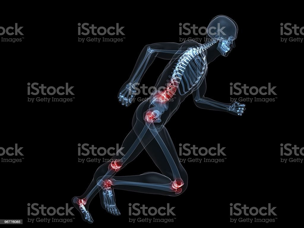 painful joints royalty-free stock photo