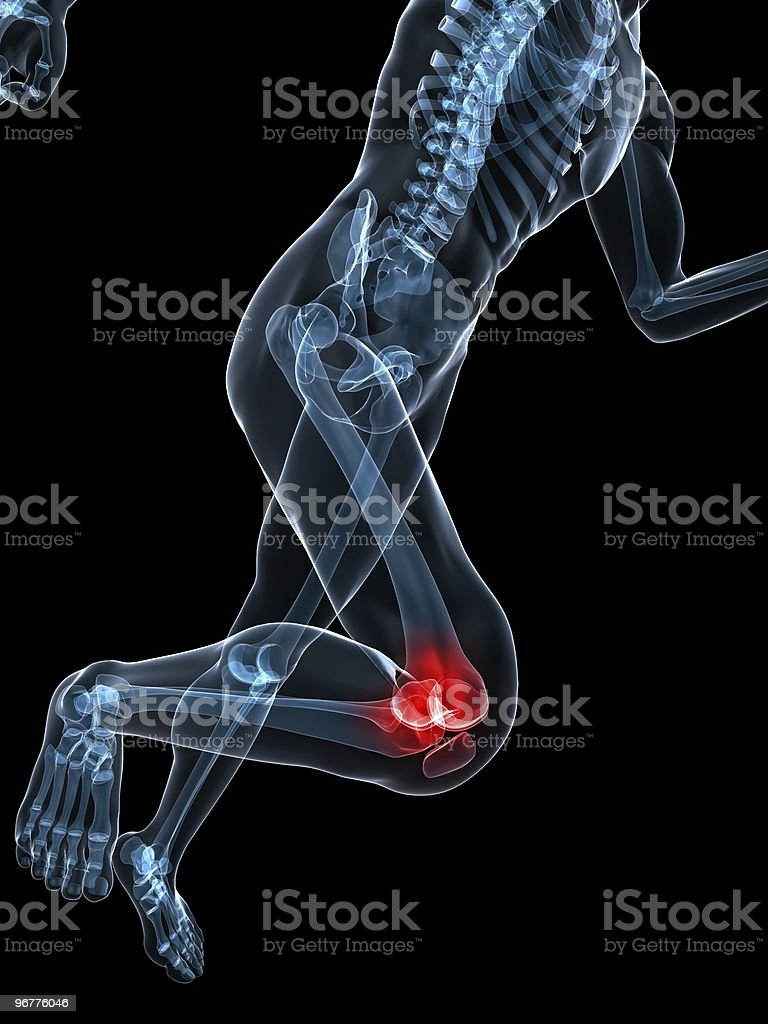 painful knee royalty-free stock photo