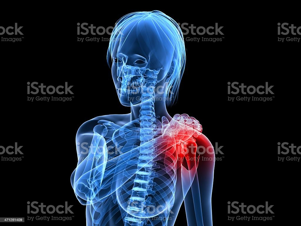 painful shoulder illustration royalty-free stock photo
