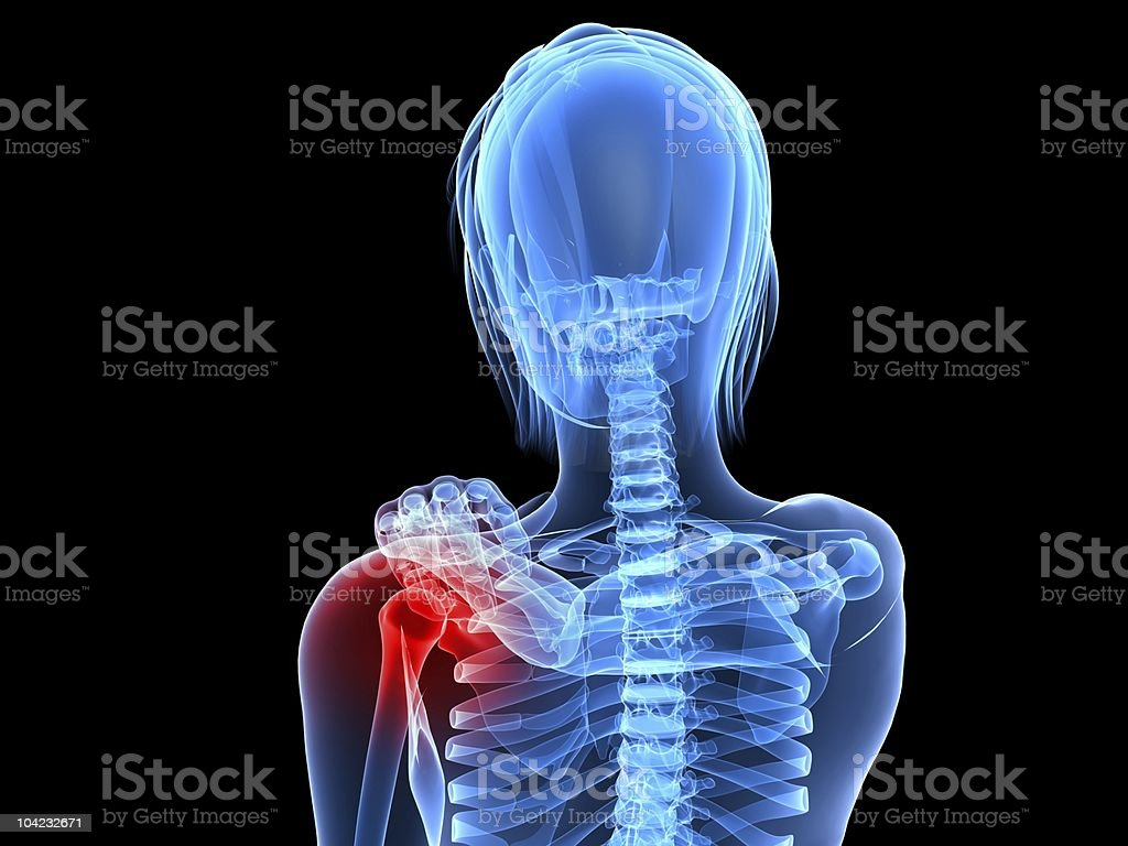 painful shoulder royalty-free stock photo