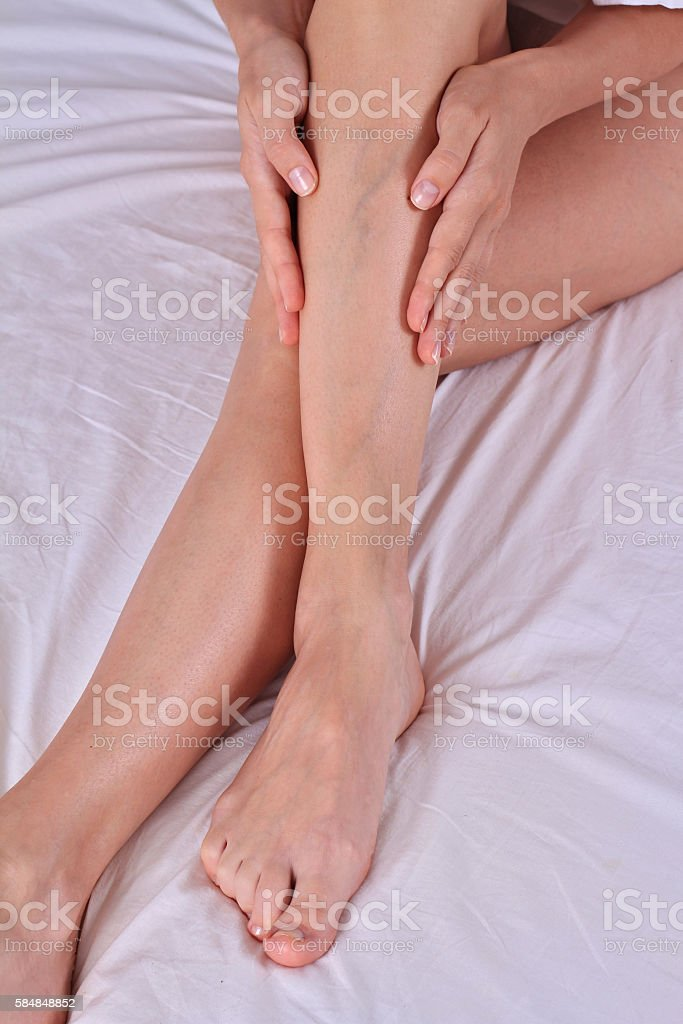 Painful varicose and spider veins on female legs stock photo
