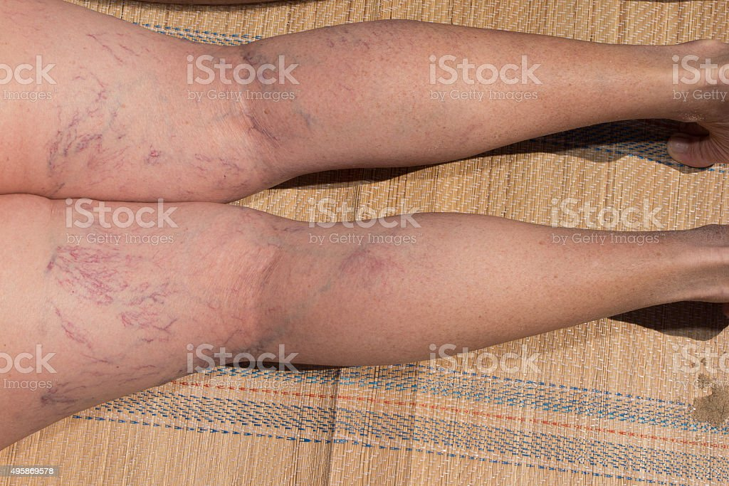 Painful varicose and spider veins stock photo