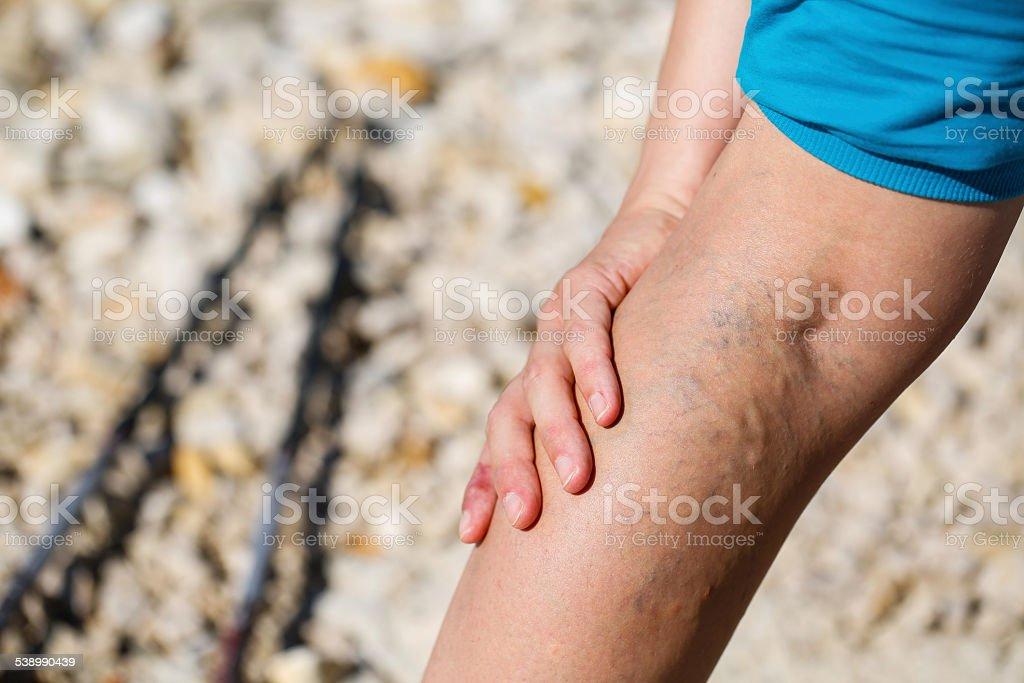 Painful varicose veins stock photo