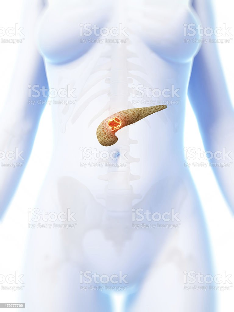 pancreas cancer royalty-free stock photo