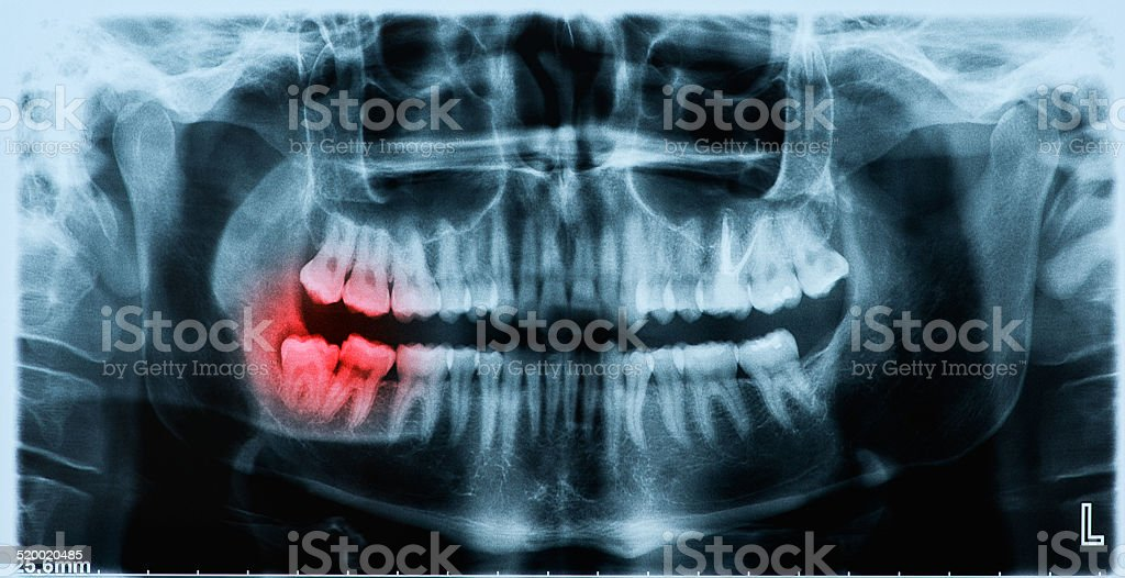 Panoramic x-ray image of teeth and mouth with wisdom teeth stock photo
