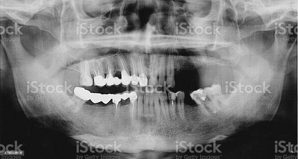 Panoramic x-ray of the mouth stock photo