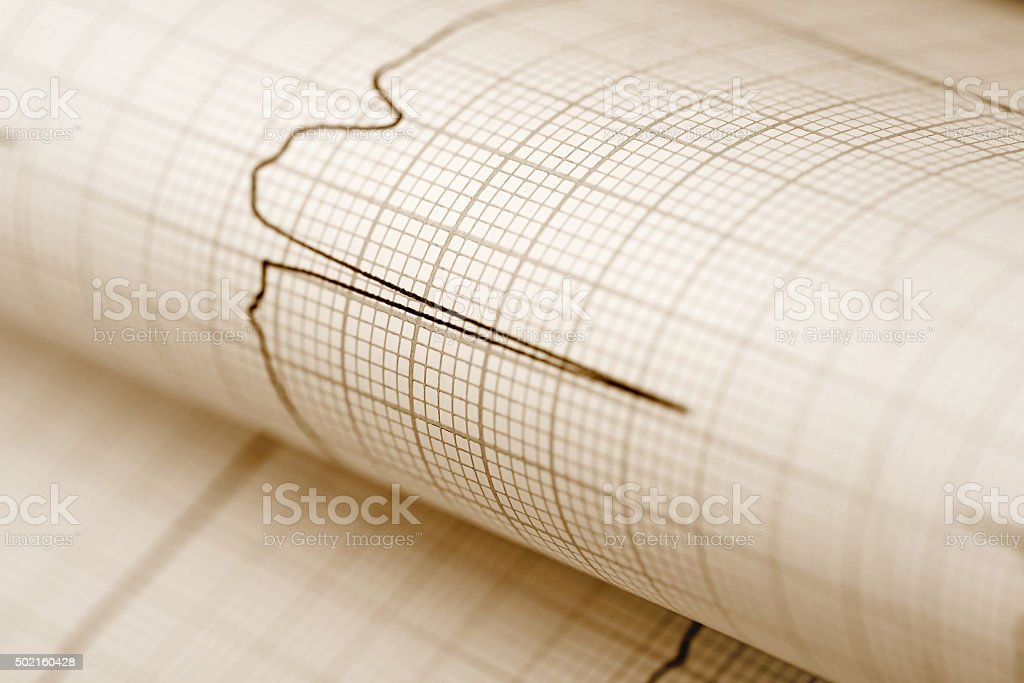 ECG paper medical background stock photo
