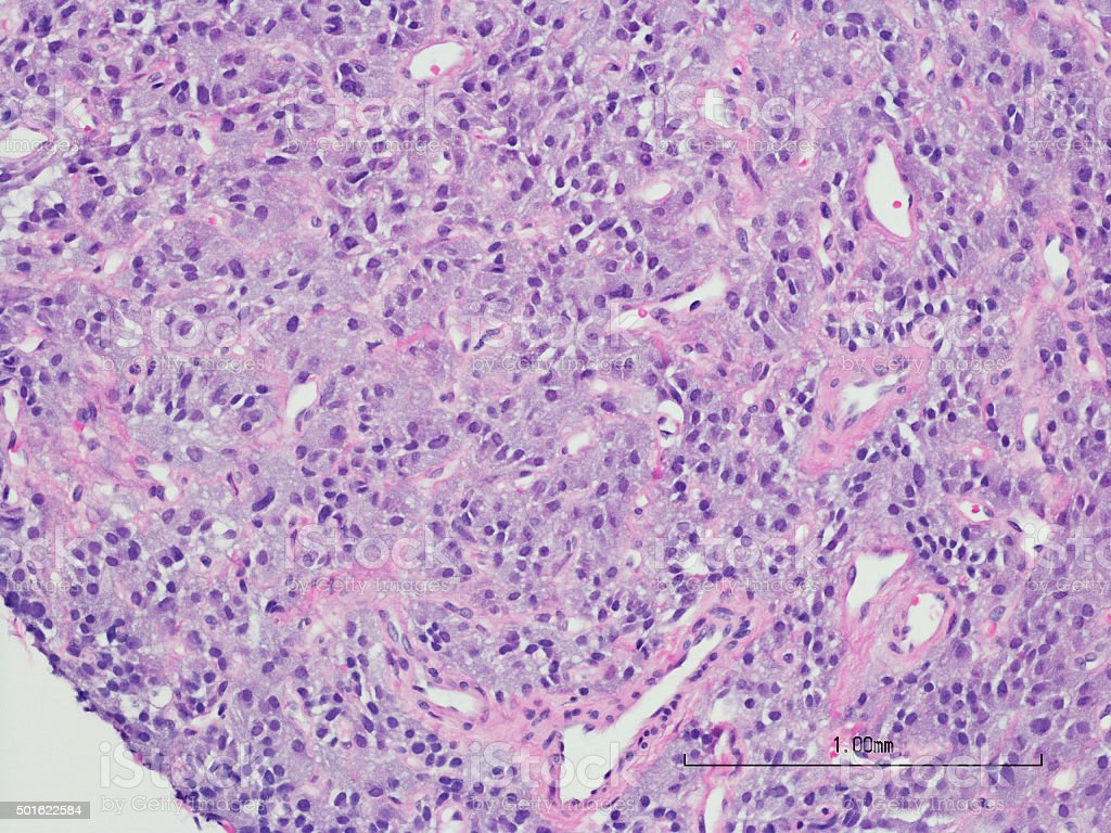 Paraganglioma of the bladder with H&E stain stock photo