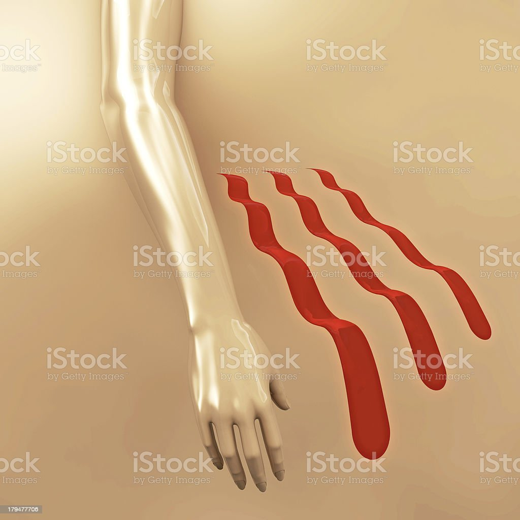 Parkinson disease - 3d rendered illustration royalty-free stock photo